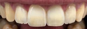 denti centrali panoramica